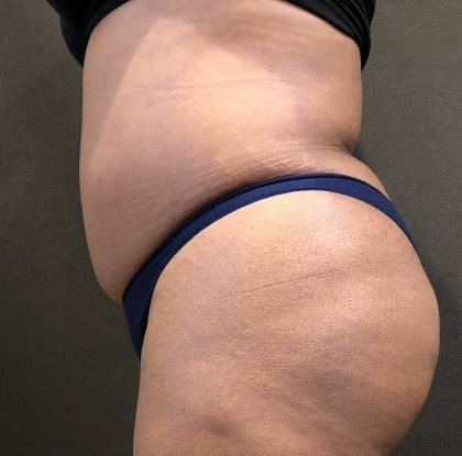 Liposuction Before & After Patient #7274