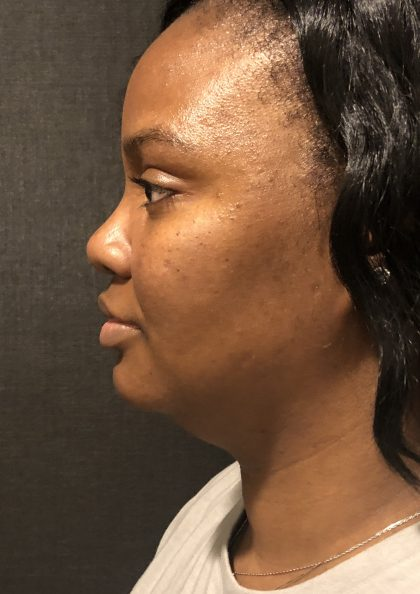 Kybella Before & After Patient #7271