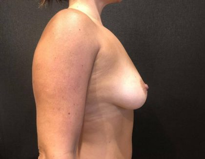 Breast Augmentation Before & After Patient #7510