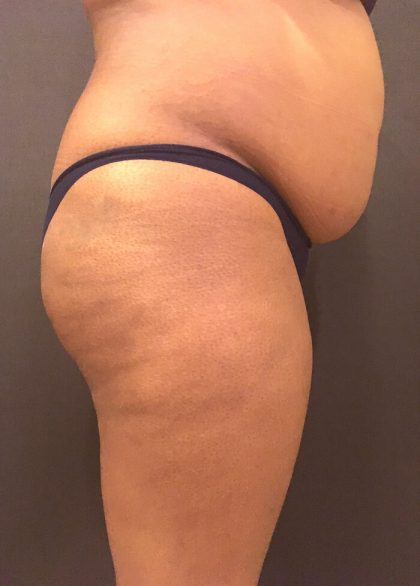 Fat Transfer to Butt Before & After Patient #7580