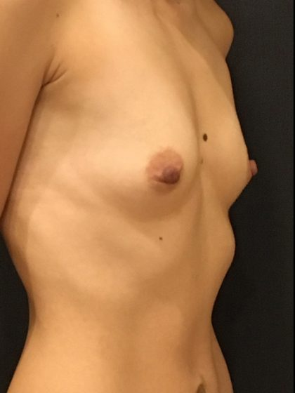 Breast Augmentation Before & After Patient #7674