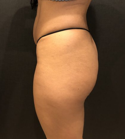 Fat Transfer to Butt Before & After Patient #7846