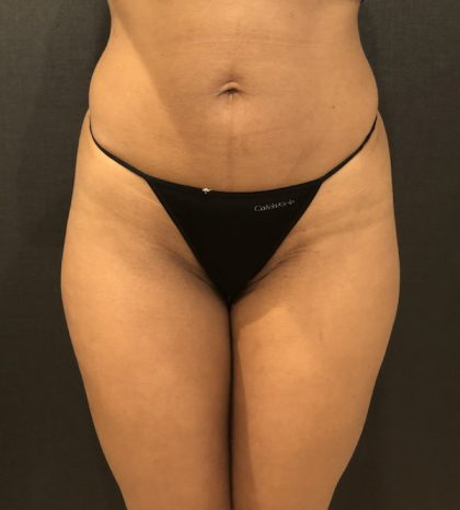 Liposuction Before & After Patient #7843