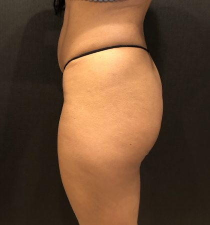 Fat Transfer to Butt Before & After Patient #7867