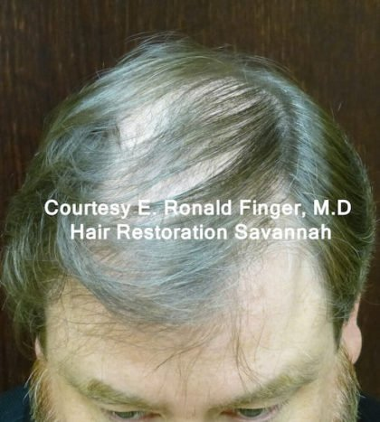 Hair Loss Before & After Patient #8456