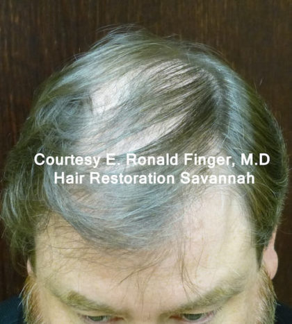 Hair Restoration with Neograft Before & After Patient #8456