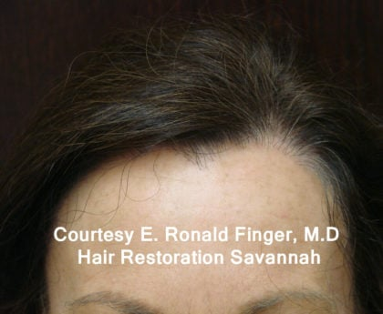 Hair Loss Before & After Patient #8461