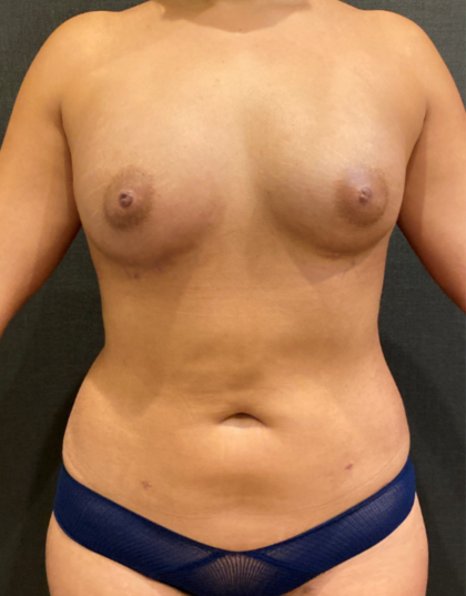 Liposuction Before & After Patient #9419