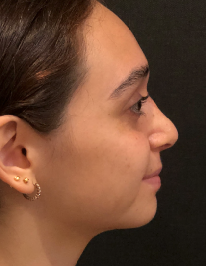 Rhinoplasty Before & After Patient #9758