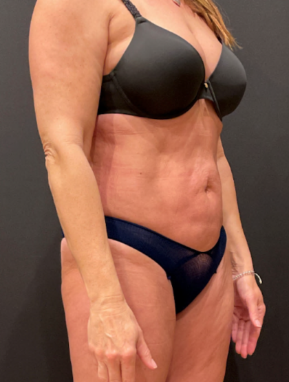 Liposuction Before & After Patient #9504