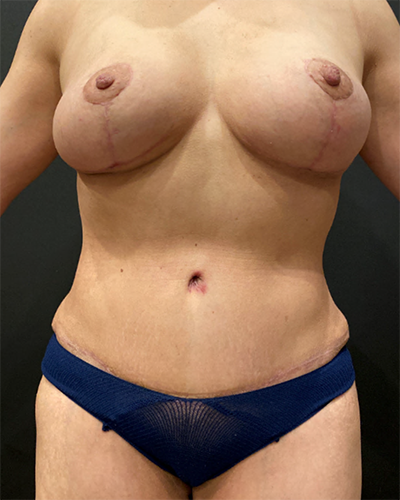 Breast Augmentation Before & After Patient #10372