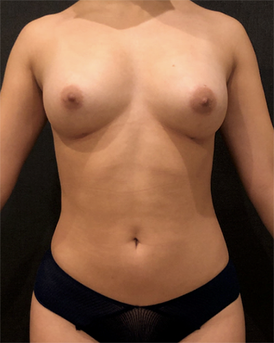 Fat Transfer to Breast Before & After Patient #10381