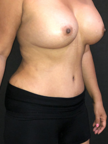 Renuvion Before & After Patient #10739