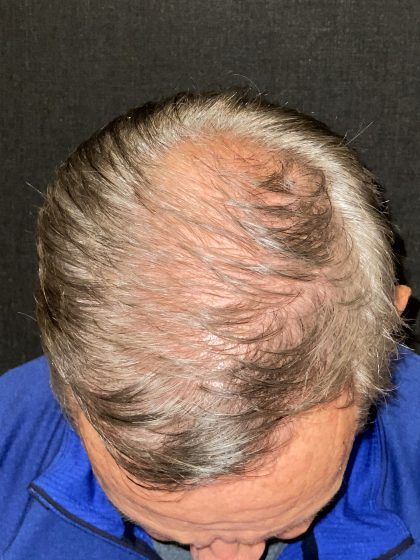 Hair Restoration with Neograft Before & After Patient #10946